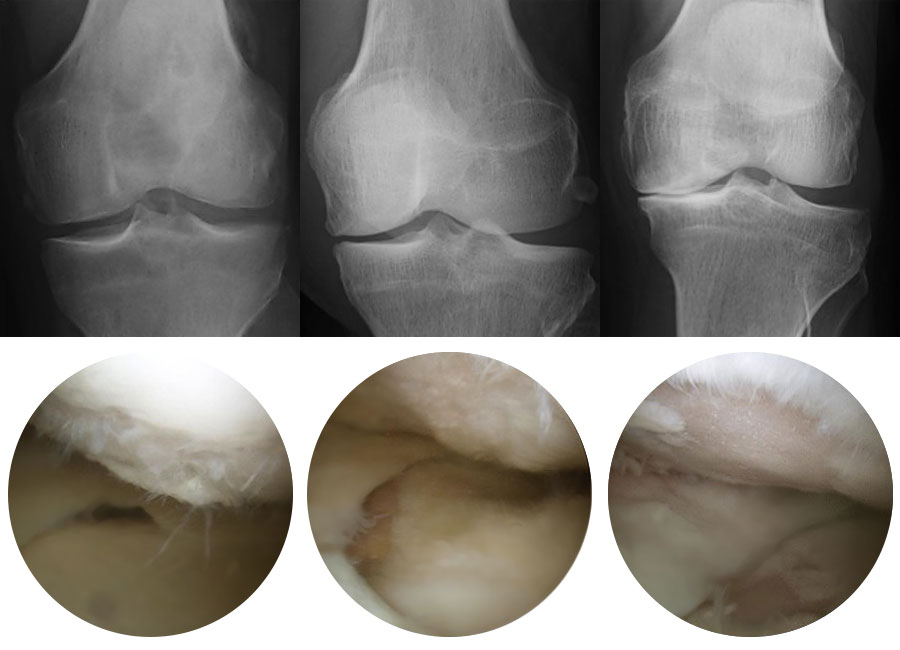 Knee Arthritis Photos and X-Rays
